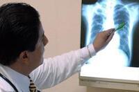 Nuevos seguros de gastos médicos no serán ilimitados